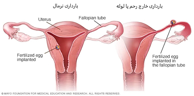 ds00622 im01216 pr7 ectopicthu jpg - از کجا بفهمیم بارداری خارج از رحم است + نشانه ها و علائم ها
