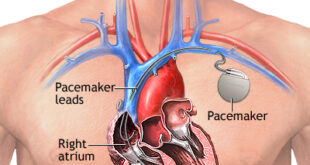 Heart pacemaker 310x165 - باتری قلب برای چه کسانی است