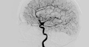 angiography brain 310x165 - احتمال مرگ در آنژیوگرافی مغز